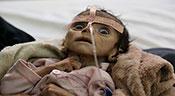 Yémen: Six enfants tués ou blessés chaque jour par les raids saoudiens, selon l'UNICEF