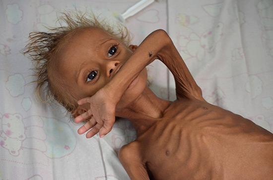 Yémen: la vie d'1,5 million d'enfants menacée par la malnutrition.