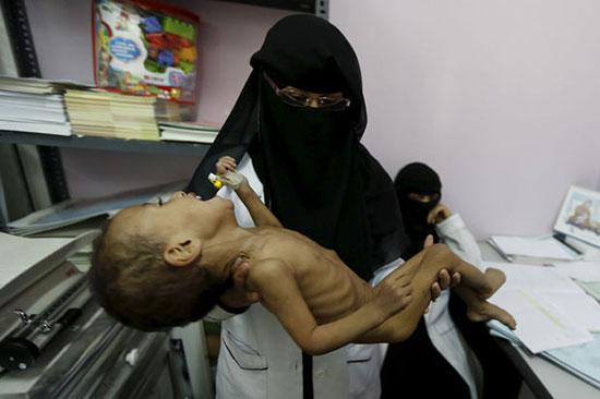 Yémen: guerre sous silence et crise humanitaire