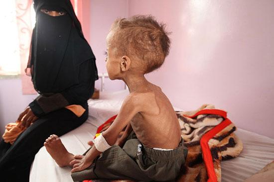 Famine au Yémen: plus de 17 millions de personnes ont besoin d'une aide vitale