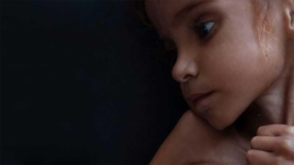 Yémen: La tragédie oubliée