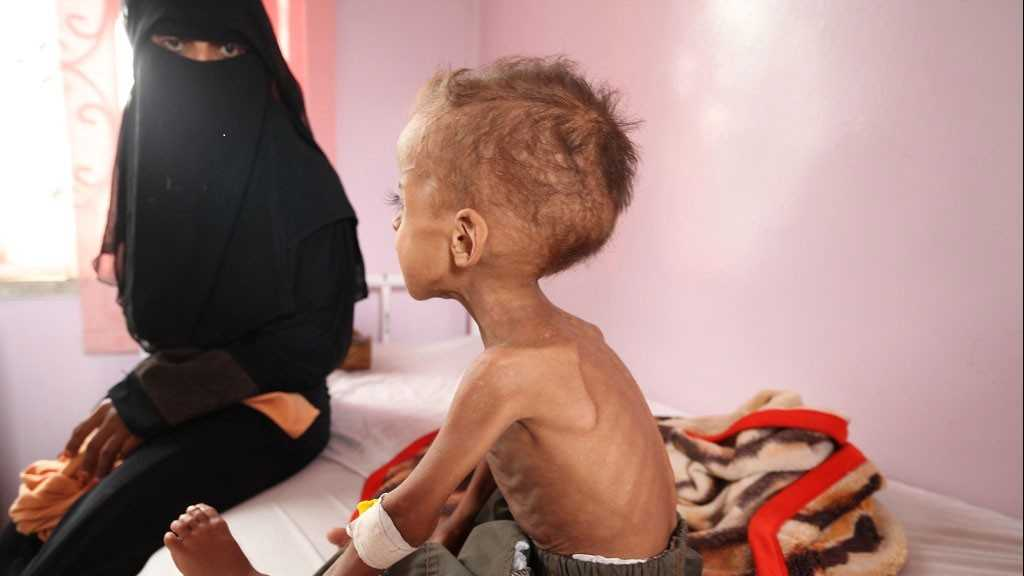 Le yémen est devenu un véritable enfer pour les enfants