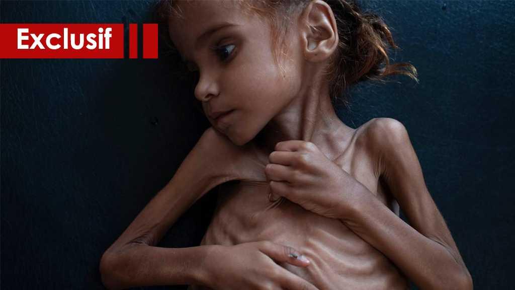 Oui, vous êtes capables d'aider les enfants affamés du Yémen !