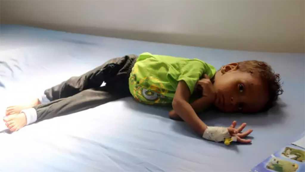Yémen: Des millions d'enfants sont au bord de la famine selon l'Unicef