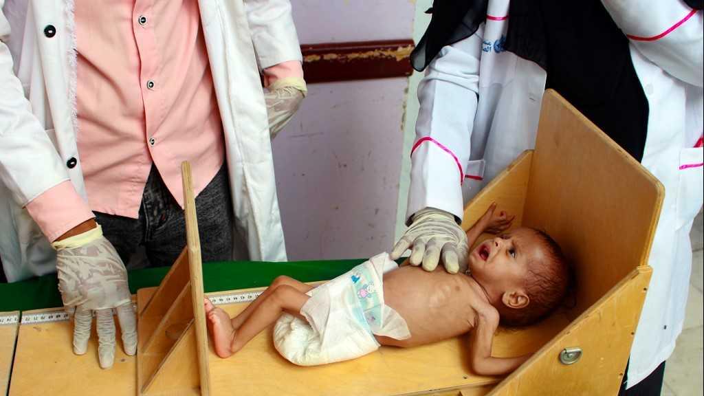 Covid-19: la pandémie aggrave la malnutrition des enfants