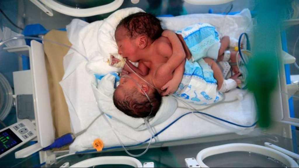 Yémen: dans un état critique, deux bébés siamois attendent une opération à l'étranger