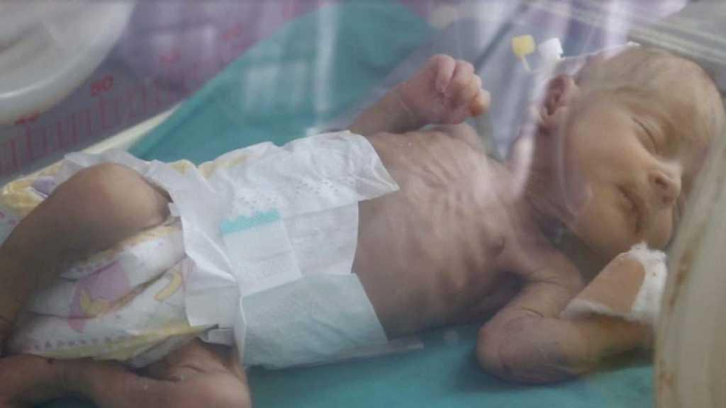2,3 millions d'enfants yéménites exposés à la famine, s'alarme Save The Children